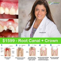 Hurry Up for Thursday Special Offer! 🍏$1,599 ROOT CANAL & CROWN 🍎Affordable Dentistry of Hollywood 👉http://www.affdentistry.com/ 🏥Address: 2219 Hollywood Blvd #104, Hollywood, FL 33020 📞Ph 24/7 & Emergency: (786)808-9988, (954)589-2176 🕙Mo to Fr 9am-6pm; Sa 9am-1pm