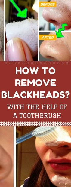 How to Remove Blackheads with the Help of a Toothbrush. Need to know.