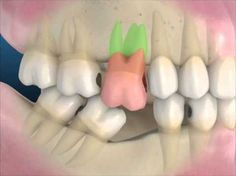 Repinned by www.GreenbrierDental.com
