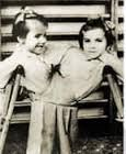 This is a picture of two twin's veins sewn together to make Siamese twins. This shows how gruesome Mengele's experiments were.