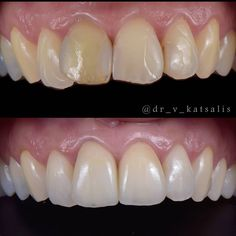 """Vasilis Katsalis on Instagram: """"Zirconia crowns on the centrals!! I think the cases where you have to place crowns on one or two upper incisors are the most challeching…"""" Perfect Smile, Crowns, Cases, Instagram, Crown, Crown Royal Bags"""