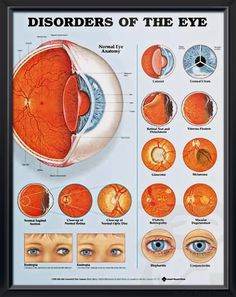 Disorders of the Eye anatomy poster illustrates cataract, corneal ulcers, retinal tear and detachment, floaters, glaucoma, more. Vision for doctors and nurses.