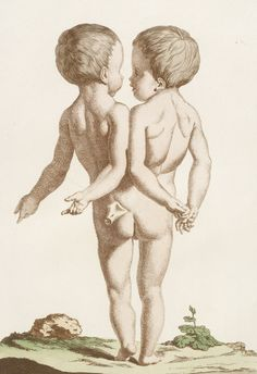 Les Écarts de la nature: Enfant monstrueux. Published 1775 by the french couple Nicolas-François Regnault and Geneviève Regnault. Medical Drawings, Medical Illustrations, Art Alevel, Human Oddities, Painting The Roses Red, Medical Pictures, Religious Paintings, Queer Art, Bizarre Art