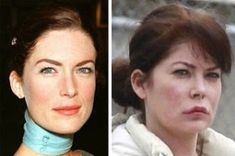 Lara Flynn Boyle Plastic Surgery Before And After: Lip Fillers, Botox, Fat Injection (PHOTOS) - Celebrity Weight Loss and Celebrity Plastic Surgery Bad Plastic Surgeries, Plastic Surgery Gone Wrong, Lip Gloss Homemade, Diy Lip Gloss, Facial Fillers, Lip Fillers, Twin Peaks, Lip Augmentation, Lipstick For Fair Skin