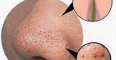 What Causes Blackheads on Nose, Lip Line, Ear and Back - Acne What Causes Blackheads, Blackheads On Back, Pimples On Forehead, Pimples Under The Skin, How To Get Rid Of Pimples, Blackhead Remedies, Acne Remedies, Blackhead Remover, Natural Remedies