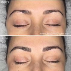 You Need to See What These Brows Look Like Before and After Microblading