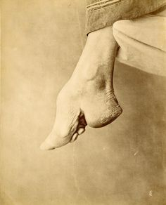 Brutal Practice for Beauty. Baron Raimund von Stillfried-Ratenicz - [Chinese Bound Foot, Shanghai
