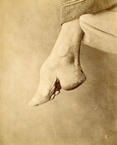 Baron Raimund von Stillfried-Ratenicz - [Chinese Bound Foot, Shanghai