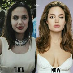 Remember Angelina Jolie's Lookalike Who 'Had A Plastic Surgery' To Resemble Her? She Faked It Remember Angelina Jolie's Lookalike Who 'Had A Plastic Surgery' To Resemble Her? She Faked It Celebrities Before And After, Celebrities Then And Now, Beautiful Celebrities, Angelina Jolie Plastic Surgery, Celebrity Plastic Surgery, Nose Plastic Surgery, Plastic Surgery Photos, Nose Surgery, Angelina Jolie Fotos