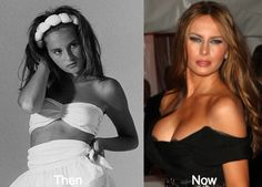 Melania Trump is a beauty to behold. She is subjected to plastic surgery rumors to maintain her looks. From Botox, nose jobs to breast augmentation, there are Trump Melania, Melania Knauss Trump, First Lady Melania Trump, Celebrities Before And After, Plastic Surgery, Model, Beauty, Celebrity Memes, Celebrity Dresses