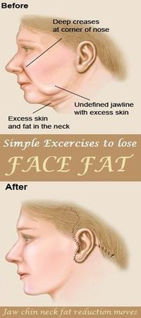 Fitness Jaw release: This jaw exercise will help you to get high cheekbones and sharp jaw line. It will also help in reducing - Jaw release: This jaw exercise will help you to get high cheekbones and sharp jaw line. It will also help in reducing Fitness Workouts, Easy Workouts, Workout Diet, Fitness Humor, Jaw Exercises, Facial Exercises For Jowls, Aerobic Exercises, High Cheekbones, The Face