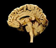 Brain cross section