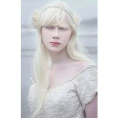 albinismo - Buscar con Google