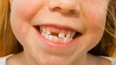 Principal writes letter to tooth fairy for student's lost tooth