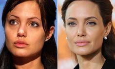 O antes e depois das sobrancelhas das famosas - Beleza - MdeMulher - Ed. Abril