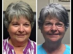 In this Thyroid weight loss case study I will walk you through step-by-step how Kathy was able to lose 42 pounds in 3 months using Byetta + T3 + NDT.
