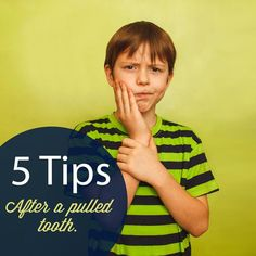 Have a tooth pulled? Here are a few tips to help manage the discomfort and promote healing! - A mild painkiller such as Ibuprofen should be enough once the numbing wears off. - Rinse gently with warm salt water after 24 hours as needed throughout Wisdom Teeth Healing, Wisdom Teeth Food, Wisdom Teeth Pulled, Dentistry For Kids, Family Dentistry, Teeth Surgery, Dental Surgery, Pediatric Dentist, Dentist In