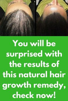 You will be surprised with the results of this natural hair growth remedy, check now! When someone complains of hair loss or baldness, aging is the first thing that comes to mind. But aging is not the only factor nowadays. Thanks to our modern lifestyle, the environment and the associated factors like pollution, stress and toxins in food, even young people are beginning to suffer from hair loss. Hair loss …