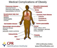 #medical complications of #obesity#stroke #cpr