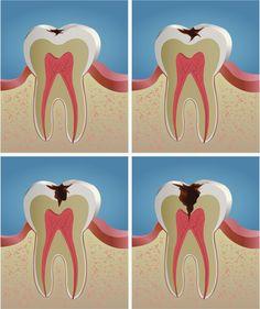 Dental Clinic 3D: ¿Cómo se forma la caries?