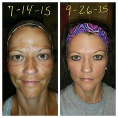 From Customer Michelle Martin: Well, here goes nothing..... again, I am getting nothing by promoting this product, just sharing in hopes of helping anyone else who WAS in the same boat I was in!!! I have only eyeliner, mascara, and lip gloss, all Mary Kay of course, on my face!! Not one drop of concealer, foundation, or powder!! This is what Rodan and Fields Reverse program has done for me in just over 2 months!! Reverse is the only product of theirs I've tried, and I'm over