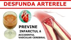 Doar un pahar din acest suc va ajuta să vă desfundati arterele – Stiai Ca Prevent Heart Attack, Clogged Arteries, Cleanse Your Body, Juice Fast, Blood Vessels, Allergy Free, Natural Healing, Healthy Drinks, Allergies