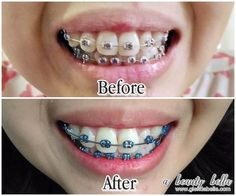 Safe for braces! Ap 24 Whitening Toothpaste, Whitening Fluoride Toothpaste, Best Teeth Whitening, Hair Color 2018, White Teeth, Septum Ring, Halloween Face Makeup, Hair Beauty, Skin Care