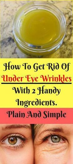 How To Get Rid Of Under Eye Wrinkles With 2 Handy Ingredients. Plain And Simple eye care How To Get Rid Of Under Eye Wrinkles With 2 Handy Ingredients. Plain And Simple Home Remedies, Natural Remedies, Health Remedies, Herbal Remedies, Yoga Kunst, Dry Eyes Causes, Dental, Under Eye Wrinkles, Eyes Problems