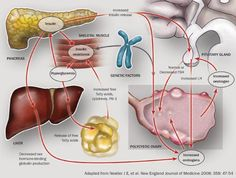 Pathophysiology of Polycystic Ovarian Disease and insulin resistance. PCOD is related to abnormally high levels of androgens. It's characterized by painful symptoms such as dysmenorrhea and menstrual irregularities including oligomenorrhoea. Nursing interventions include teaching patients about special diet considerations, options for hormonal treatment, & management of pain.