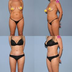 Diese Patientin störte das Fettvolumen im Bereich des Bauches und der Hüften sowie eine geringe hängende Haut am Bauch. Dies wurde mit einer intensiven VASER-Fettabsaugung sowohl vorne als auch hinten und einer zusätzlichen Bauchstraffung korrigiert. Bikinis, Swimwear, Fashion, Wels, Linz, Liposuction, La Mode, Fashion Illustrations, Fashion Models