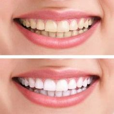 Put a tiny bit of toothpaste into a small cup, mix in one teaspoon baking soda plus one teaspoon of hydrogen peroxide, and half a teaspoon water. Thoroughly mix then brush your teeth for two minutes. Remember to do it once a week until you have reached the results you want. Once your teeth are good and white, limit yourself to using the whitening treatment once every month or two. Whitening Kit, Teeth Whitening Remedies, Instant Teeth Whitening, Natural Teeth Whitening, Beauty Hacks, Beauty Care, Beauty Secrets, Hair Beauty, Beauty Tips