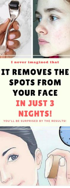 It Will Remove The Spots From Your Face In Just 3 Nights!!  #wrinkles