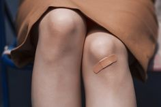 I love to wear skirts but usually have at least one bruise on my legs.