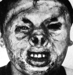 Uterine Fury Records - Plastic Surgery Disasters
