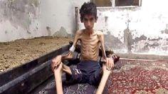 Tra le righe...: Madaya, la città assediata da Assad dove si muore di fame