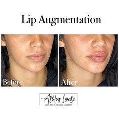 """LIP QUEEN💋💉 on Instagram: """"FULL POUT Friday! This could be you but you haven't booked your appointment yet. July is booked 🚨 DM to book August!…"""" Facial Fillers, Lip Augmentation, Physician Assistant, Appointments, Friday, Lips, Queen, Pictures, Books"""