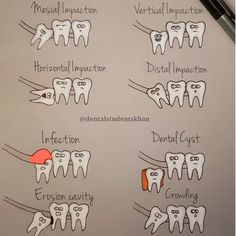 Infection: An impacted wisdom tooth will start to push through the gum and an infection can start around the top of the tooth. Infection and inflammation can cause pain, swelling and jaw stiffness. Dental cyst: The sac within the gum line which houses the wisdom tooth can become fluid-filled during impaction and form a cyst.  Cavity: An impacted wisdom tooth may push the molar next to it. This can cause a cavity where the wisdom tooth hits the other molar.