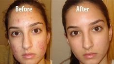 Regular Facial Cleaning with Aspirin Prevents the Formation of Acne and Pimples. – Latest Health Care Tips & News Pimples On Face, Acne And Pimples, Acne Scars, Best Homemade Face Mask, Homemade Skin Care, Lemon Face Scrubs, Skin Tag On Eyelid, Baking Soda Benefits, Skin Care