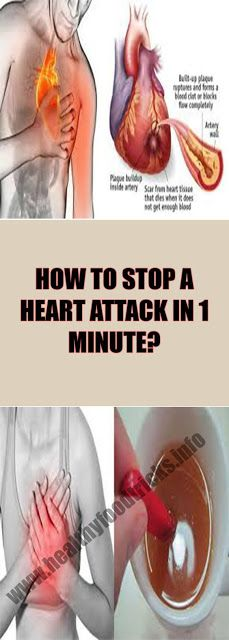 HOW TO STOP A HEART ATTACK IN 1 MINUTE?