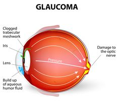 The damage of the eye's optic nerve which tends to get worse over time is the condition of glaucoma. It is affiliated with a buildup of pressure inside the eye. Glaucoma tends to be inherited and may not show up until later in life.