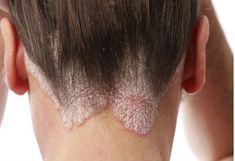 Natural Remedies for Psoriasis.What is Psoriasis? Causes and Some Natural Remedies For Psoriasis.Natural Remedies for Psoriasis - All You Need to Know Scalp Psoriasis Cure, Home Remedies For Psoriasis, What Is Psoriasis, Psoriasis Symptoms, Inverse Psoriasis, Toenail Fungus Treatment, Skin Whitening, Hair And Beauty, Psoriasis Remedies