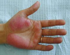 "Palmar Erythema. ""Liver palms"" - seen in portal hypertension (chronic liver); also seen in polycythemia, thyrotoxicosis, pregnancy."