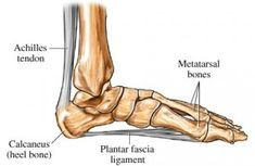 Methods to Recover from Plantar Fasciitis