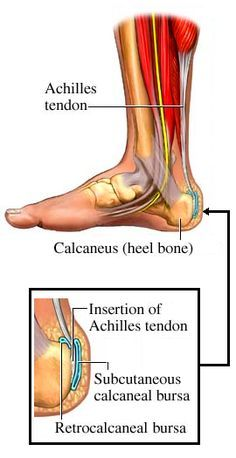 Achilles Tendonitis - this has been my daily life since May 2012 - shocked at how much there is posted about it on Pinterest!