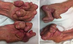 Seropositive Rheumatoid Arthritis; these are those hands. This is the result of this form of arthritis if gone untreated.