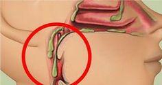 Comment réduire le mucus dans la gorge ? Évitez ces 4 aliments ! lire la suite / http://www.sport-nutrition2015.blogspot.com