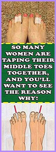 So Many Women Are Taping Their Middle Toes Together, And You'll Want To See The Reason Why! Holistic Remedies, Health Remedies, Home Remedies, Natural Remedies, Health Guru, Health And Wellbeing, Health And Nutrition, Gut Health, Natural Life