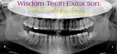 Wisdom Teeth Extraction: Tips & Tricks for an Easy, Natural Recovery -The Busy B Homemaker