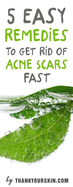how to get rid of acne scars fast Cystic Acne Treatment, Back Acne Treatment, Skin Treatments, Cystic Acne On Chin, Acne Causes, Acne Scar Removal, Hormonal Acne, Acne Remedies, Herbal Remedies