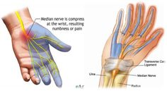 When the median nerve which runs from forearm in to the palm of the hand gets pressed at the wrist, carpal syndrome occurs. Median nerve is responsible for the sensations at palm side of the thumb and fingers. Acupressure Treatment, Peripheral Neuropathy, Acupressure Points, Acupuncture Points, Carpal Tunnel Surgery, Carpal Tunnel Relief, Pain Relief, Health, Carpal Tunnel